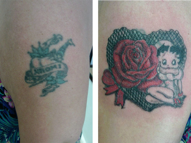 Cover Up, Before, After, Heart, Betty Boop