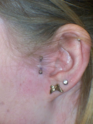 Piercing, Forward Tragus, Lobe, Rim of Ear, Ear