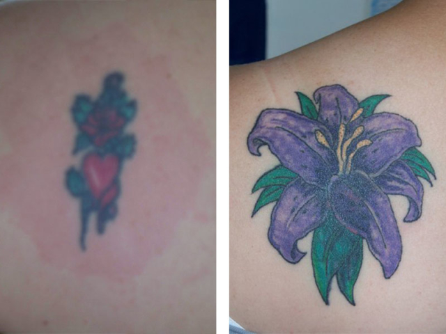 Cover Up, Before, After, Flower, Lilly