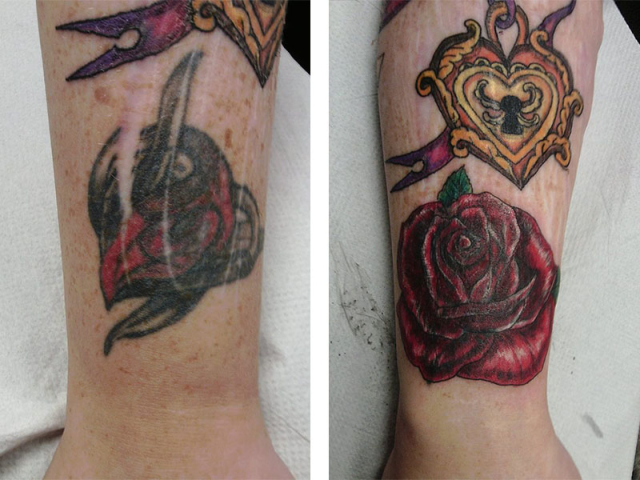 Cover Up, Before, After, Rose